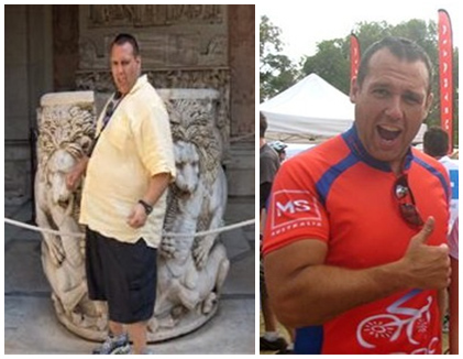 Anthony's Gastric Band