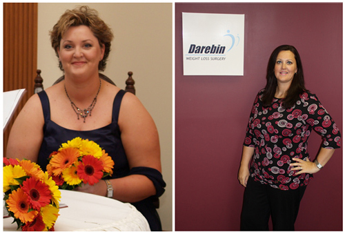 kelly-gastric-sleeve-before-after