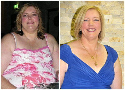 Jenny's Gastric Band