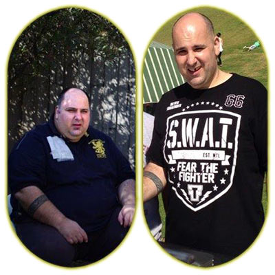 John before and after gastric sleeve surgery