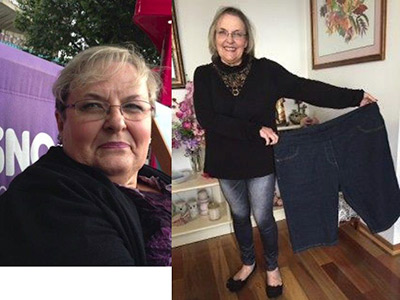 Lawvel's Gastric Sleeve