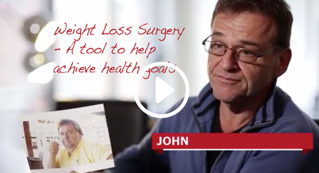 Weight loss surgery as a tool video